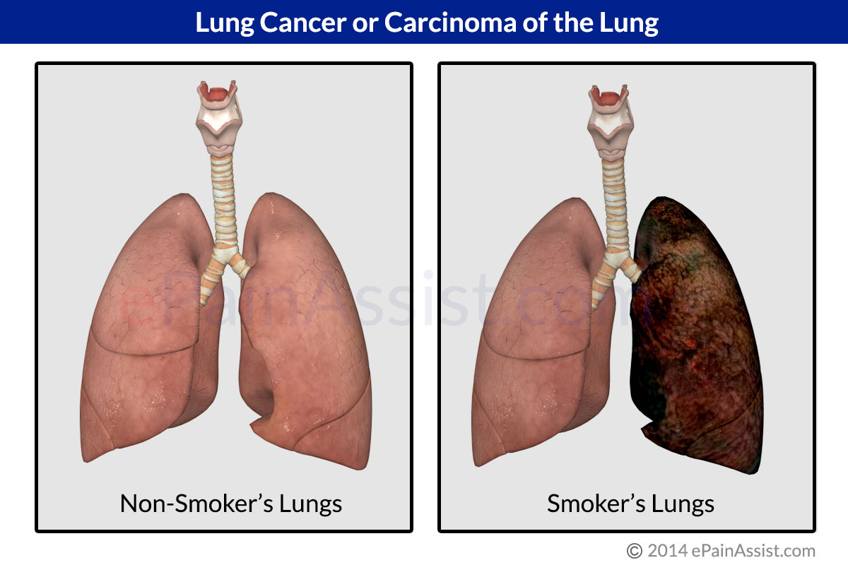 Lung Cancer Chemotherapy Side Effect