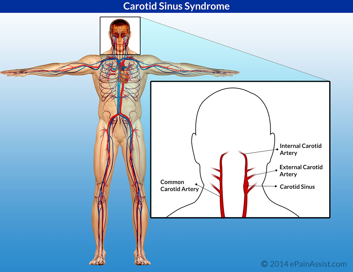 Carotid Sinus Hypersensitivity or Carotid Sinus Syndrome