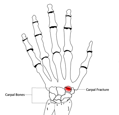 Carpal Fracture|Causes|Symptoms|Treatment-Nonsurgical ...