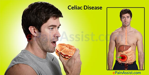 Causes of Celiac Disease: