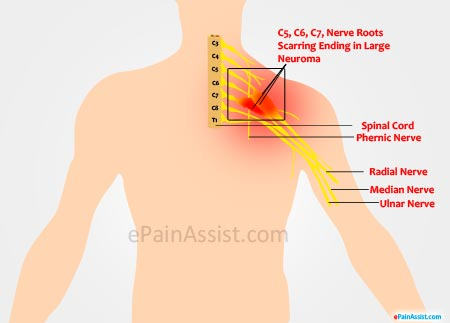 Brachial Plexus Injury Treatment Symptoms Causes Diagnosis