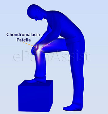chondromalacia patella|causes|symptoms|etiology|risk factors|diagnosis, Skeleton