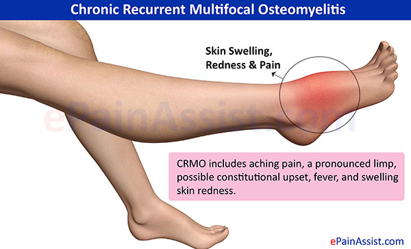 Chronic Recurrent Multifocal Osteomyelitis