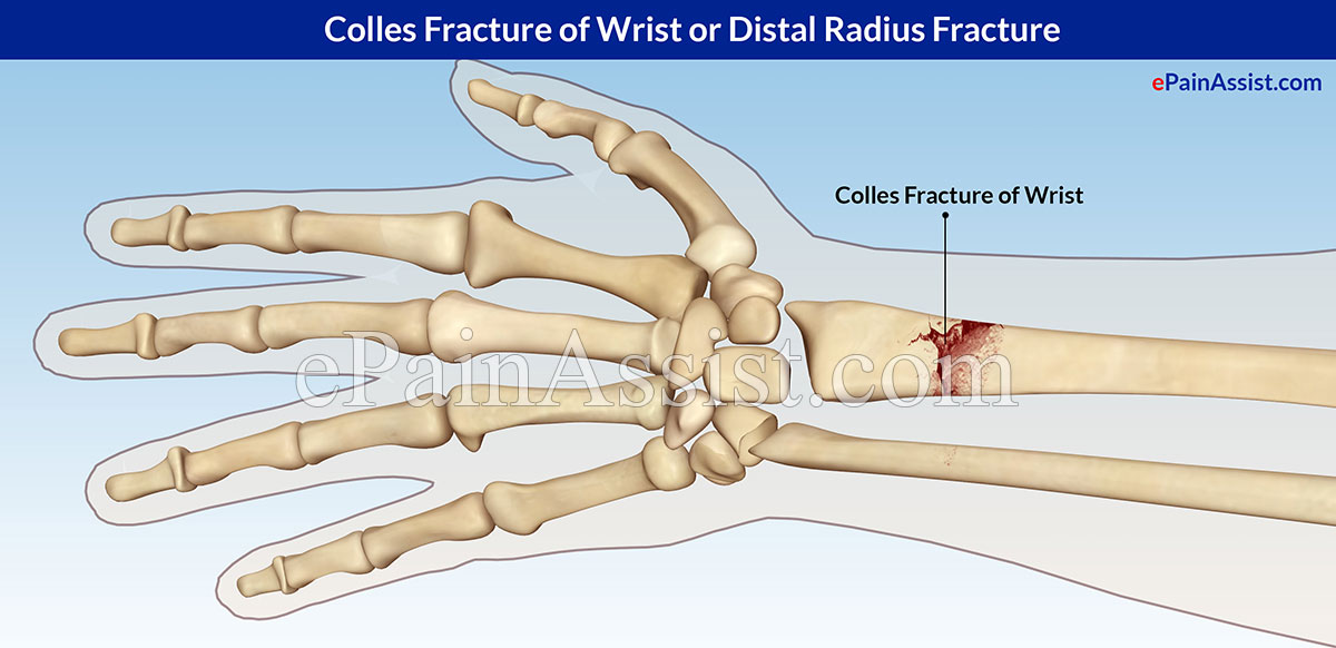 Fractured Wrist Child Colles Fracture of Wrist or