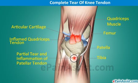 Complete Tear Of Knee Tendon