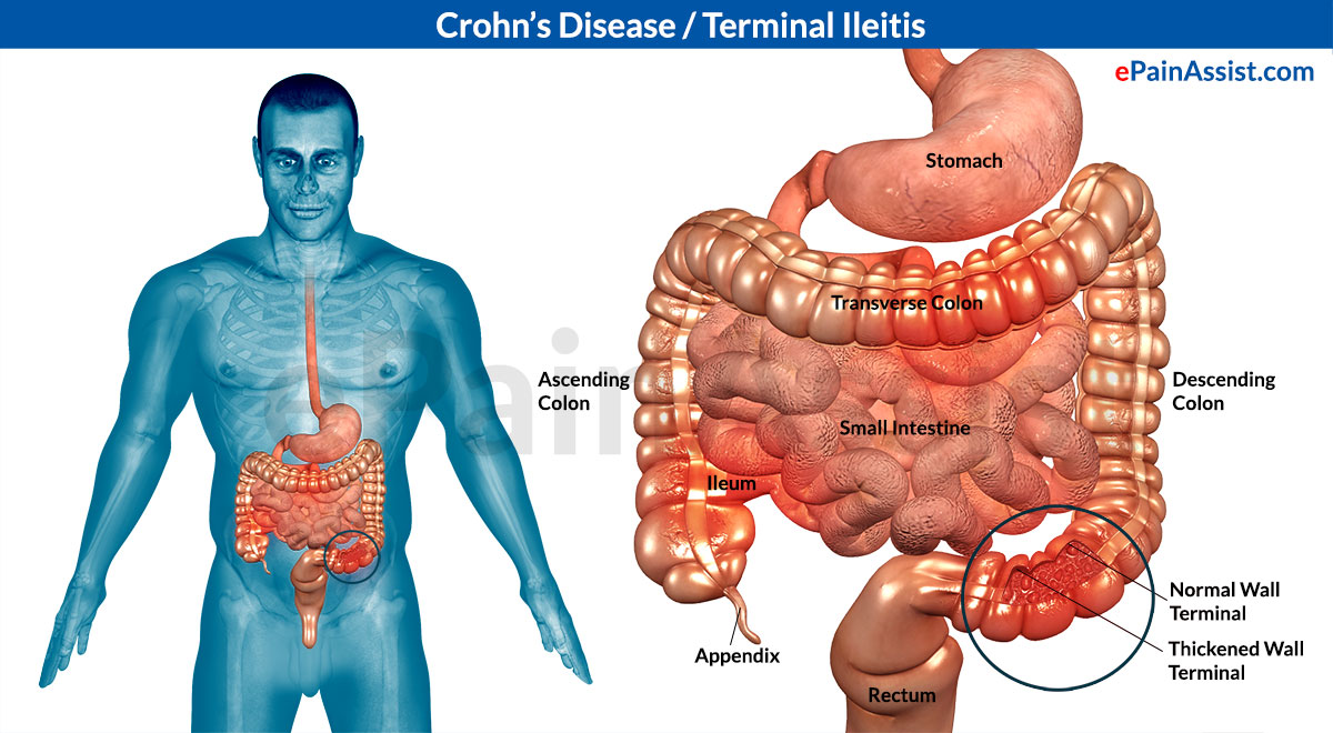 crohn's disease: treatment, causes, symptoms, signs, risk factors