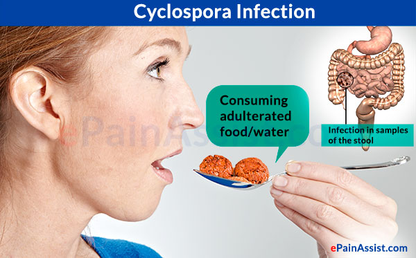 Causes of Cyclospora Infection