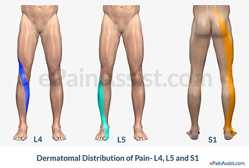Dermatomal Pain Distribution-L4, L5 and S1.