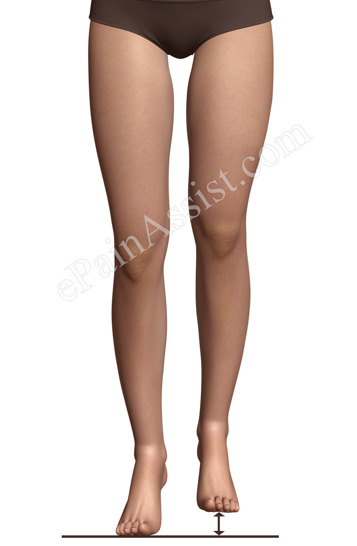 Iliotibial Band Syndrome or Runners Knee may be caused due to the leg length discrepancy