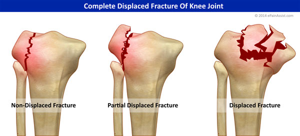 Complete Displaced Fracture Of Knee Joint