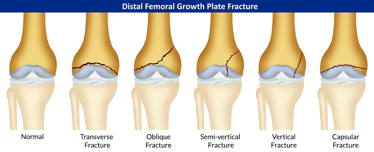 Distal Femoral Growth Plate Fracture|Symptoms|Causes|Treatment ...