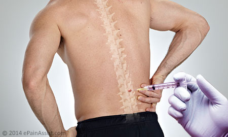 Study Suggests Epidural Steroid Injections Effective for Low Back Pain