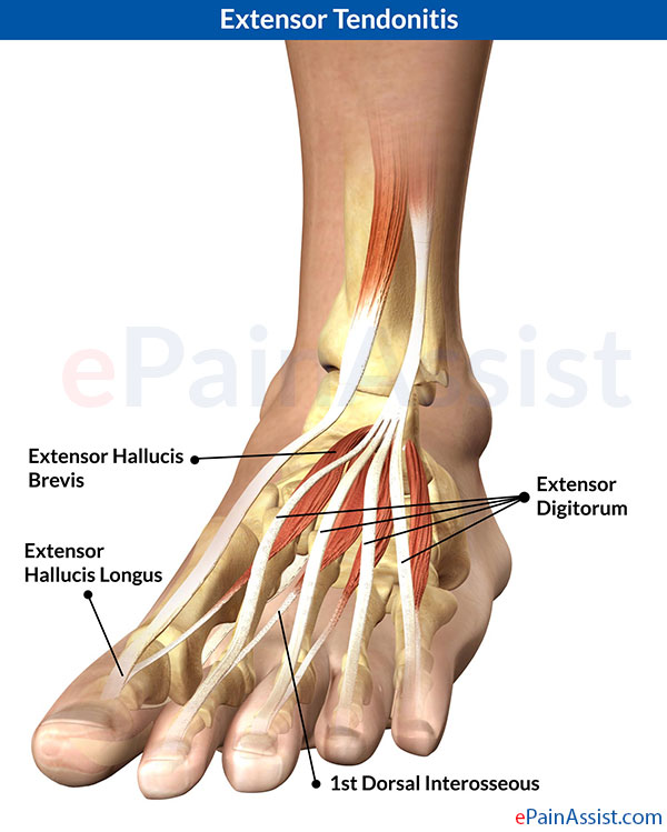 What is Extensor Tendonitis  Know Its Treatment  Symptoms  CausesExtensor Digitorum Foot