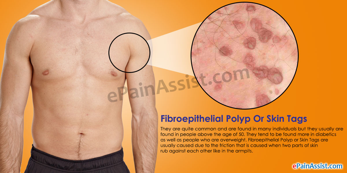 Fibroepithelial Polyp or Skin Tags