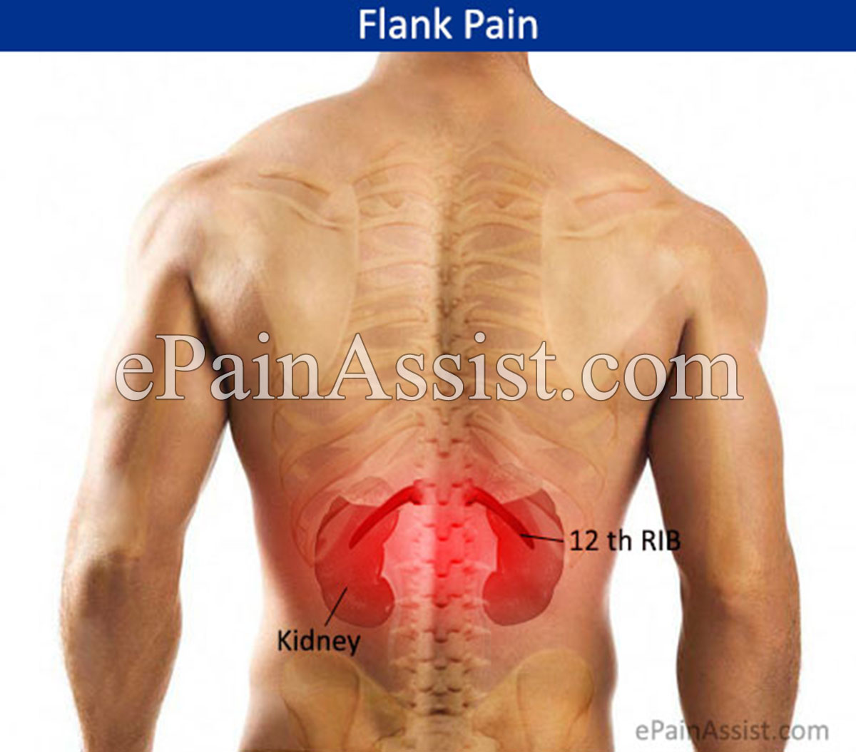 what can cause pain in the flank region?, Skeleton
