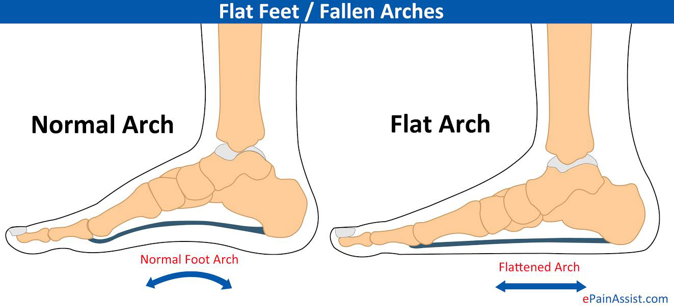 What Are Flat Feet Or Pes Plor Fallen Arches