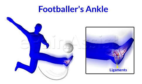 Symptoms of Footballer's Ankle