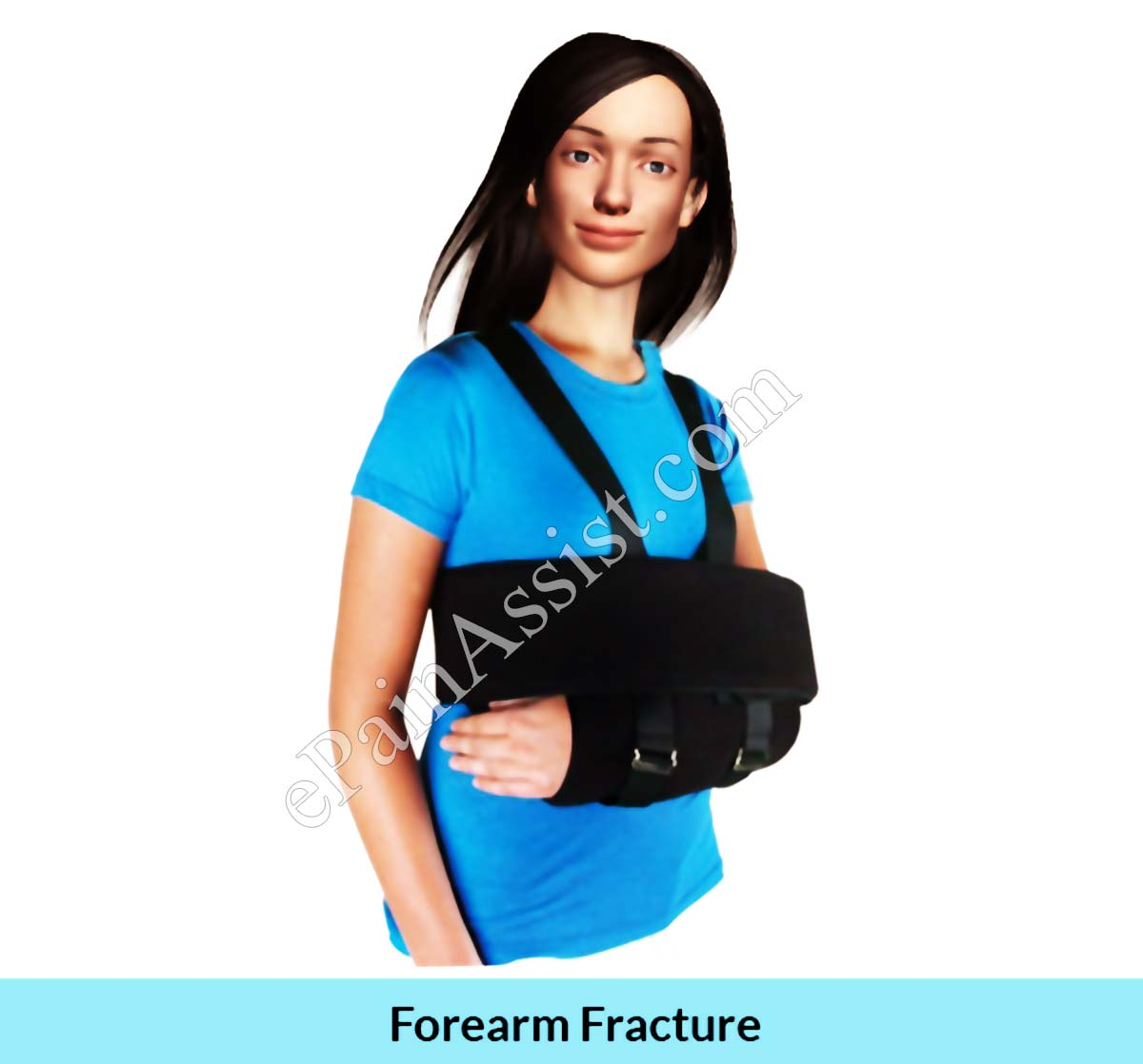 In case of a fracture,The arm should be kept in a sling to immobilize it.