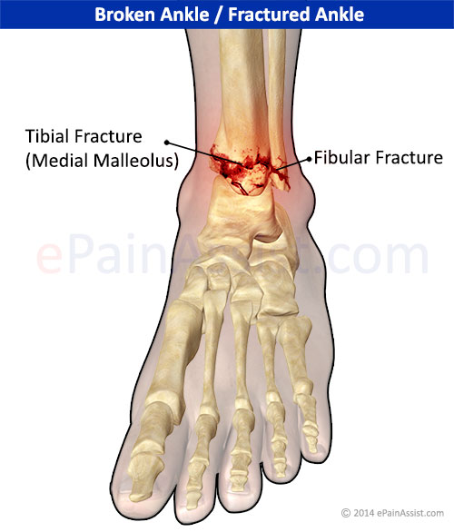 Ankle Joint Fracture|Types|Classification|Symptoms|Treatment|Recovery