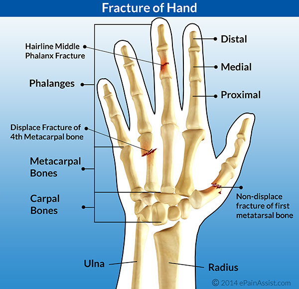 Fracture Of Hand And Fingersrisk Factorscausestypessymptoms