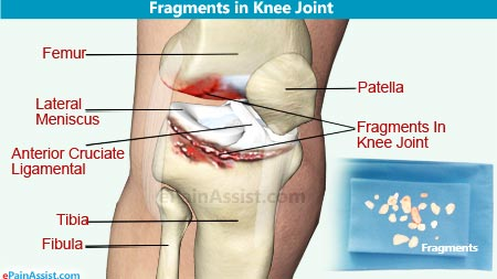 Fragments in Knee Joint