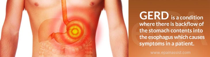 Suffering from GERD, Peptic or Reflux Esophagitis, or Heartburn? Know its Causes, Symptoms, and Treatment Options