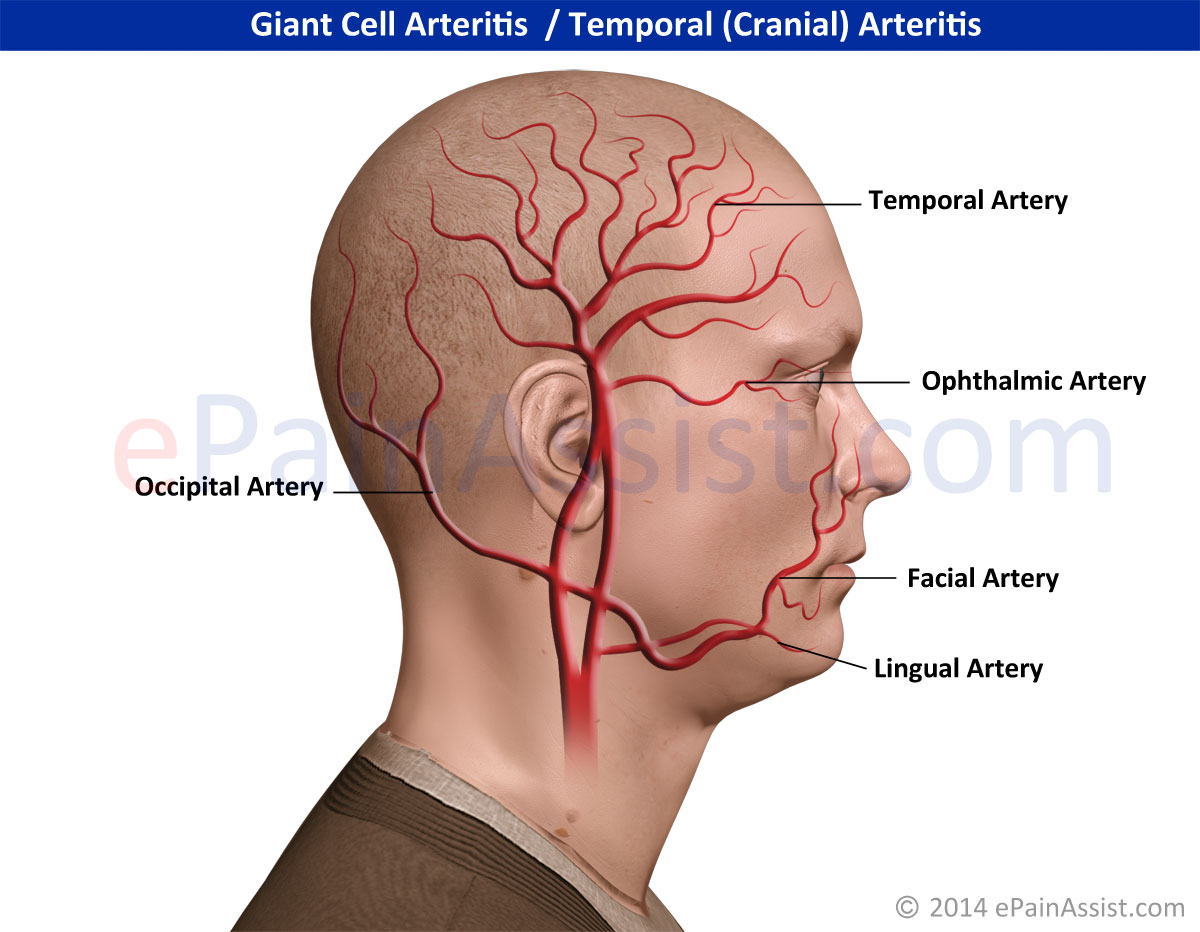 giant cell arteritis: symptoms, treatment, diagnosis, Skeleton