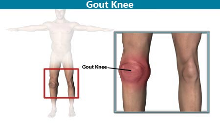 how to get rid of gout in the knee