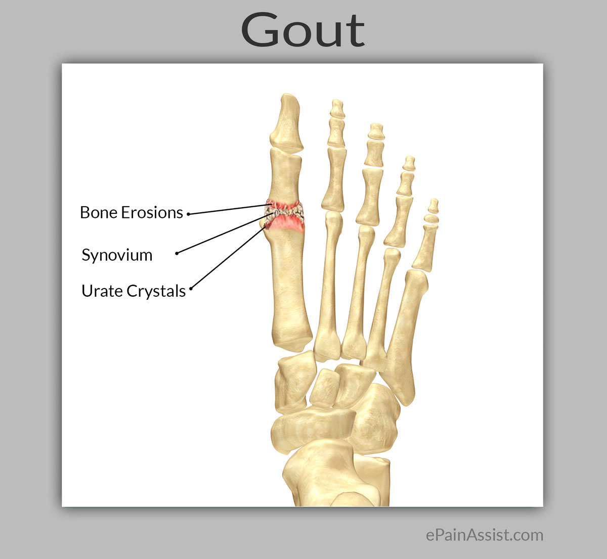 Massage Therapy For Gout