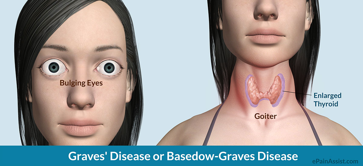 Graves Disease Or Basedow Graves Disease