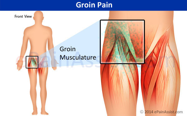 Groin Pain: Types, Symptoms, Etiology, Treatment- PT, Hernia Patch ...