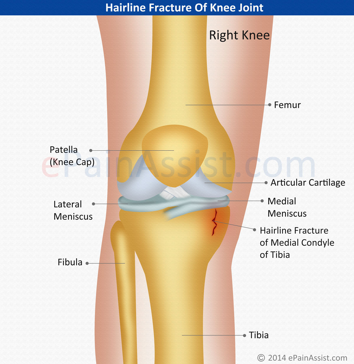Hairline Fracture Of Knee Joint