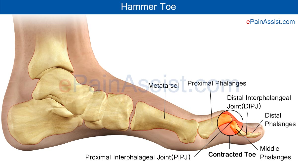 Hammer Toe or Contracted Toe|Causes|Treatment | How Does Hammer Toe ...