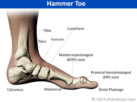 Foot Pain Due to Hammer Toe