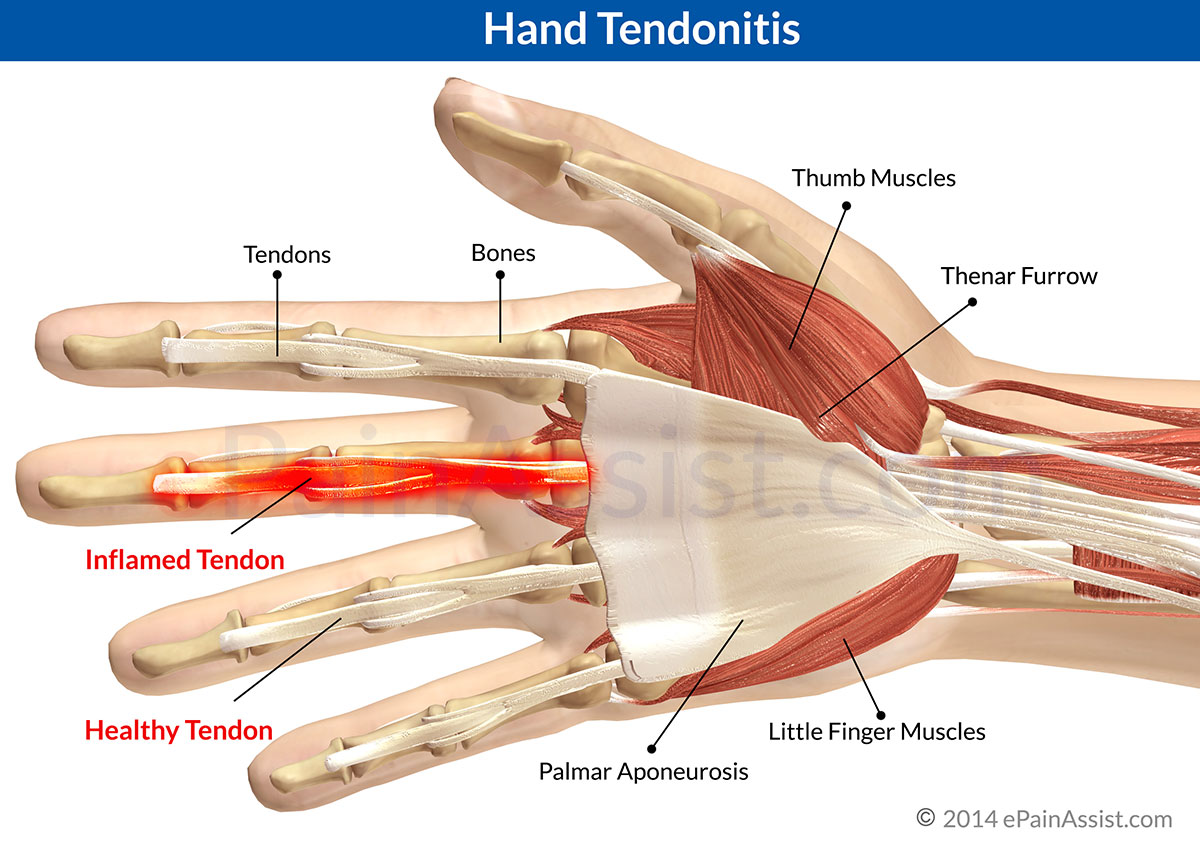 Hand Tendonitis|Causes|Risk Factors|Symptoms|Treatment