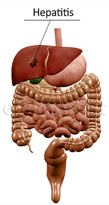 Hepatoma Can Cause Abdominal Pain or Stomach Ache