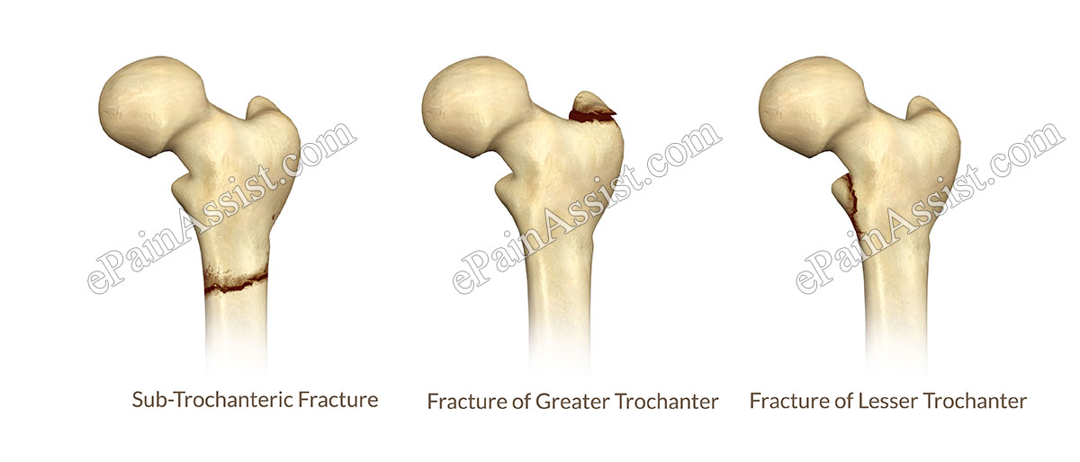 Hip Joint Fracture|Classification|Types|Causes|Symptoms