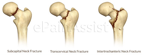 Sub-Capital Neck,Trans-Cervical Neck,Inter-Trochanteric Fracture of Hip Joint