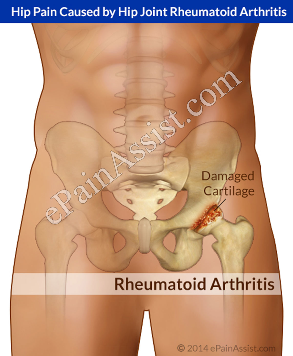 Hip Pain Caused by Hip Joint Rheumatoid Arthritis