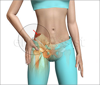 Hip Pointer or Iliac Crest Contusion Symptoms