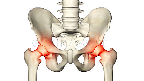 Suspected Causes of Osteoarthritis of Hips are Joint Injury