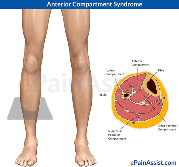 Anterior Compartment Syndrome- Cross Section of main compartments of lower leg