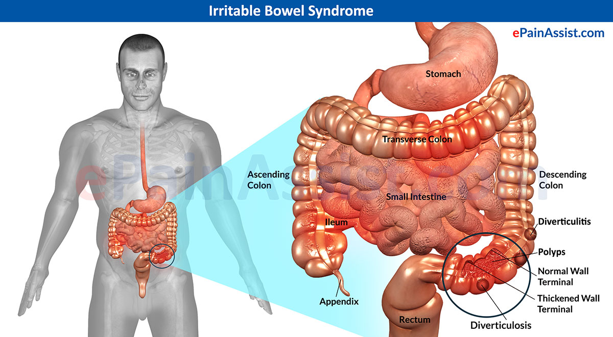 irritable bowel syndrome (ibs): treatment, symptoms, signs, types, Human body