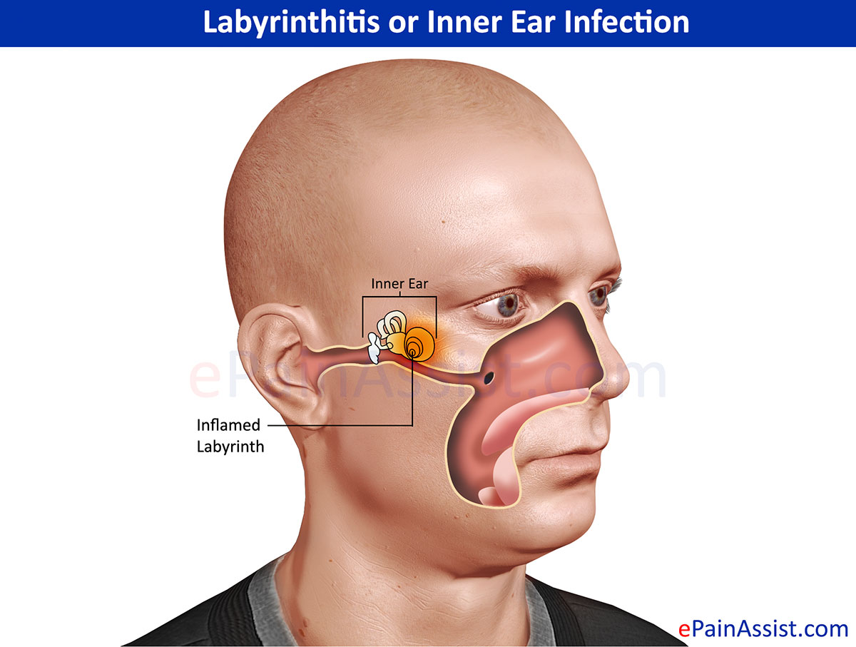 infection inner ear Adult