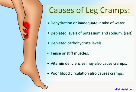 Causes of Leg Cramps