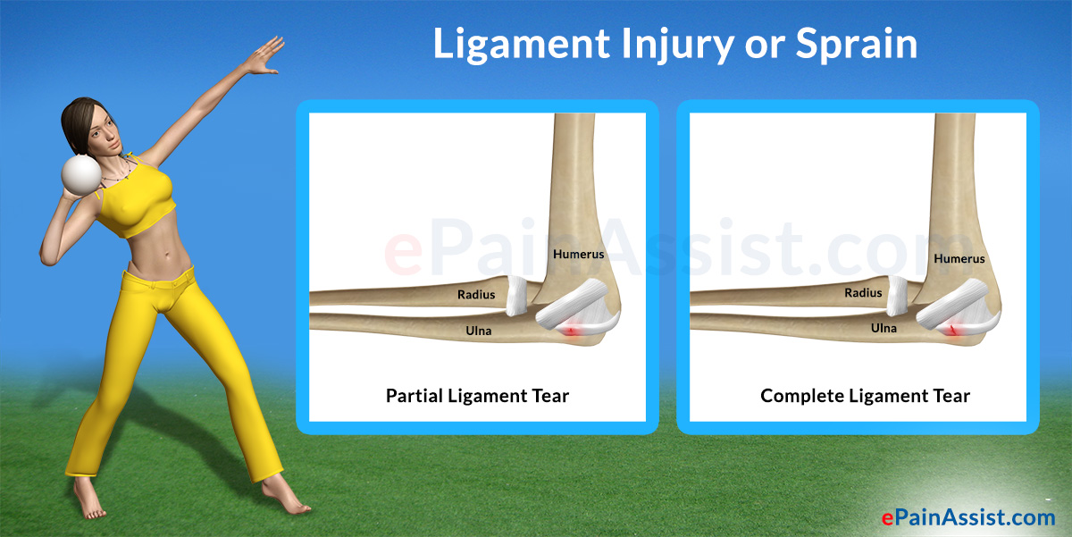 Ligament Injury or Sprain