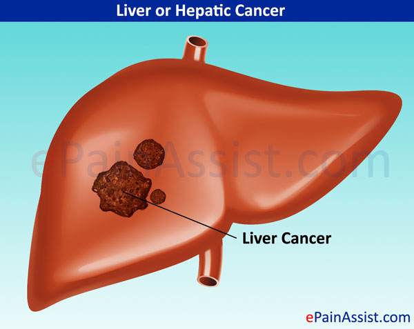 liver cancer: treatment, causes, symptoms, signs, prevention, Human body