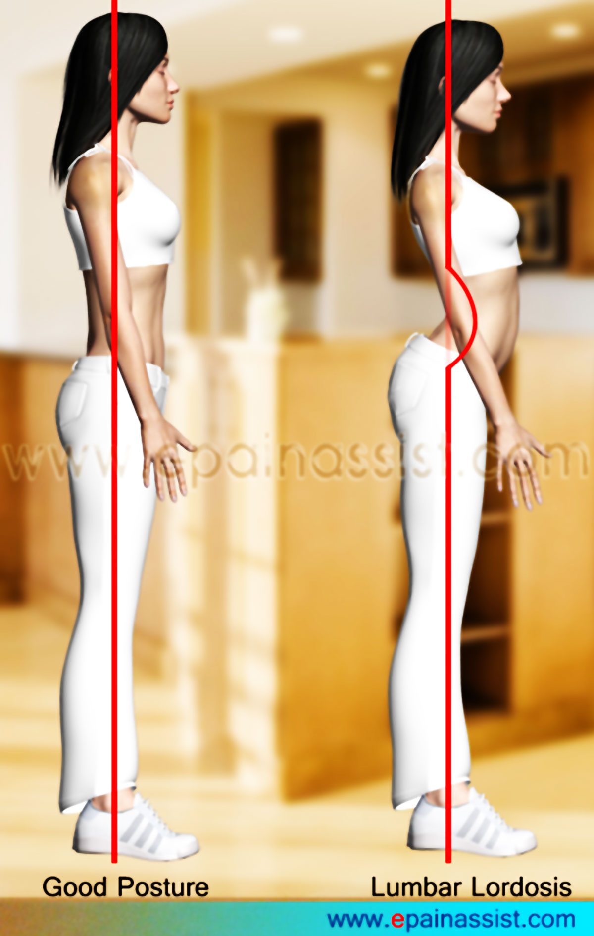 http://cdn-0.epainassist.com/images/Article-Images/Lordosis.jpg