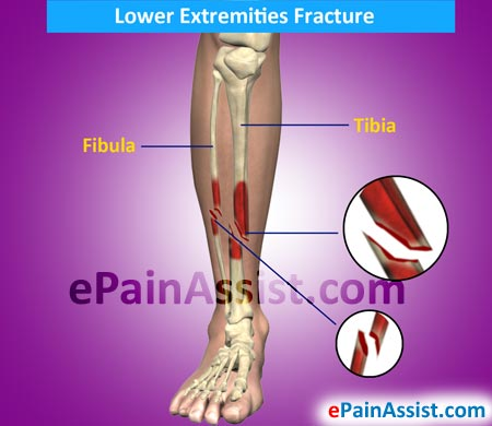 Lower Extremities Fractures