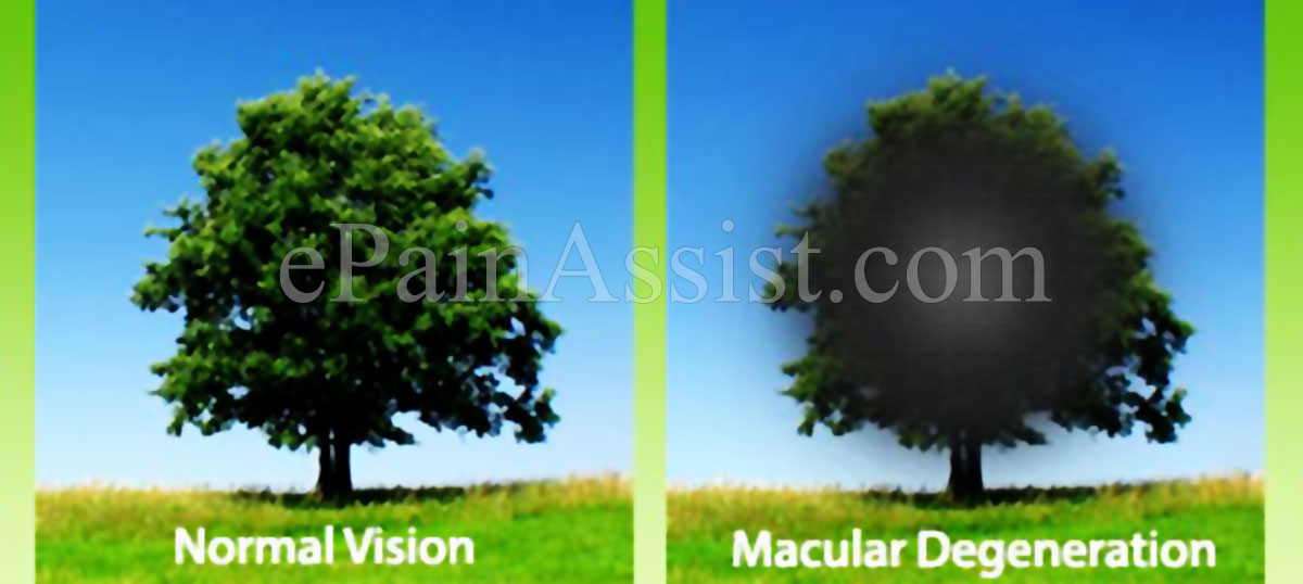 the symptoms and treatment of macular degeneration Macular degeneration is a chronic disease that results in vision loss in the centre of a person's field of vision causes, symptoms, treatment.